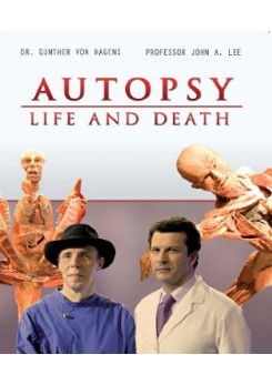 Watch Full Movie - Autopsy: Life and Death - TUMOURS
